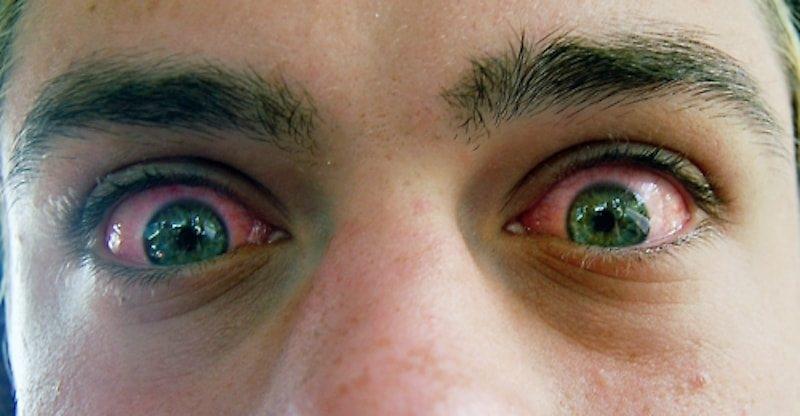 Как чтобы не покраснели глаза от марихуаны купит жареные конопляные семена