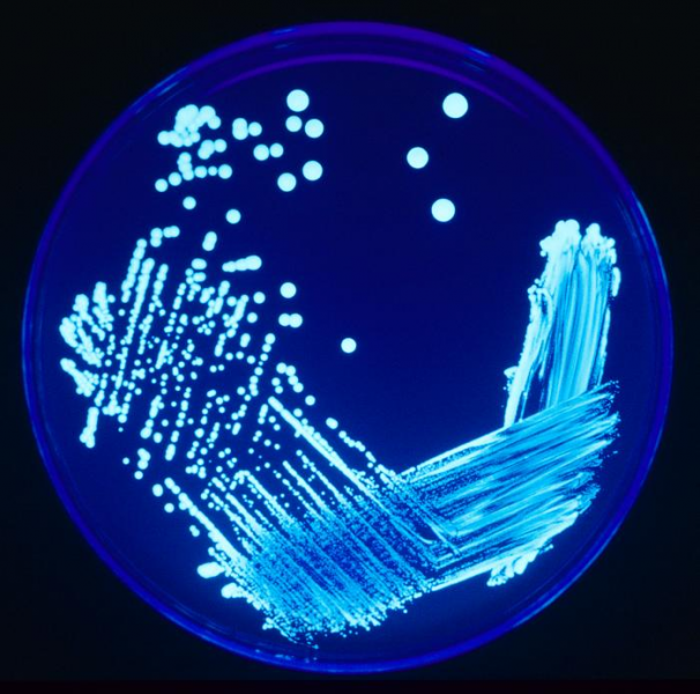 550322748-Legionella_Plate_01.thumb.png.64d7cb9e3200263b7f5c0792a9691f0c.png
