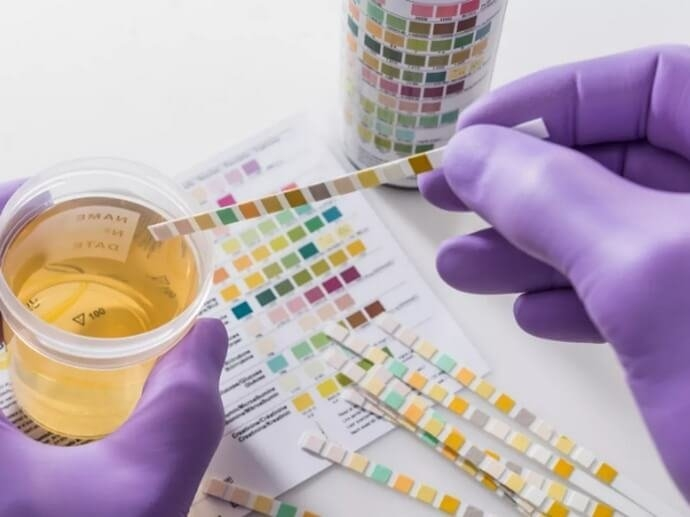 cannabis-detox-urine-hair.png